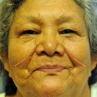 acupuncture-sur-une-femme-lakota-sioux